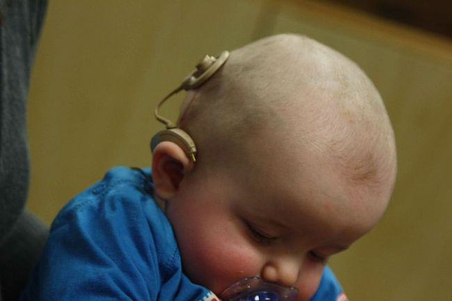 800px-infant_with_cochlear_implant
