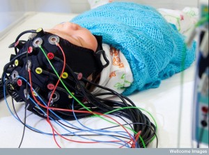 A newborn baby getting an EEG.