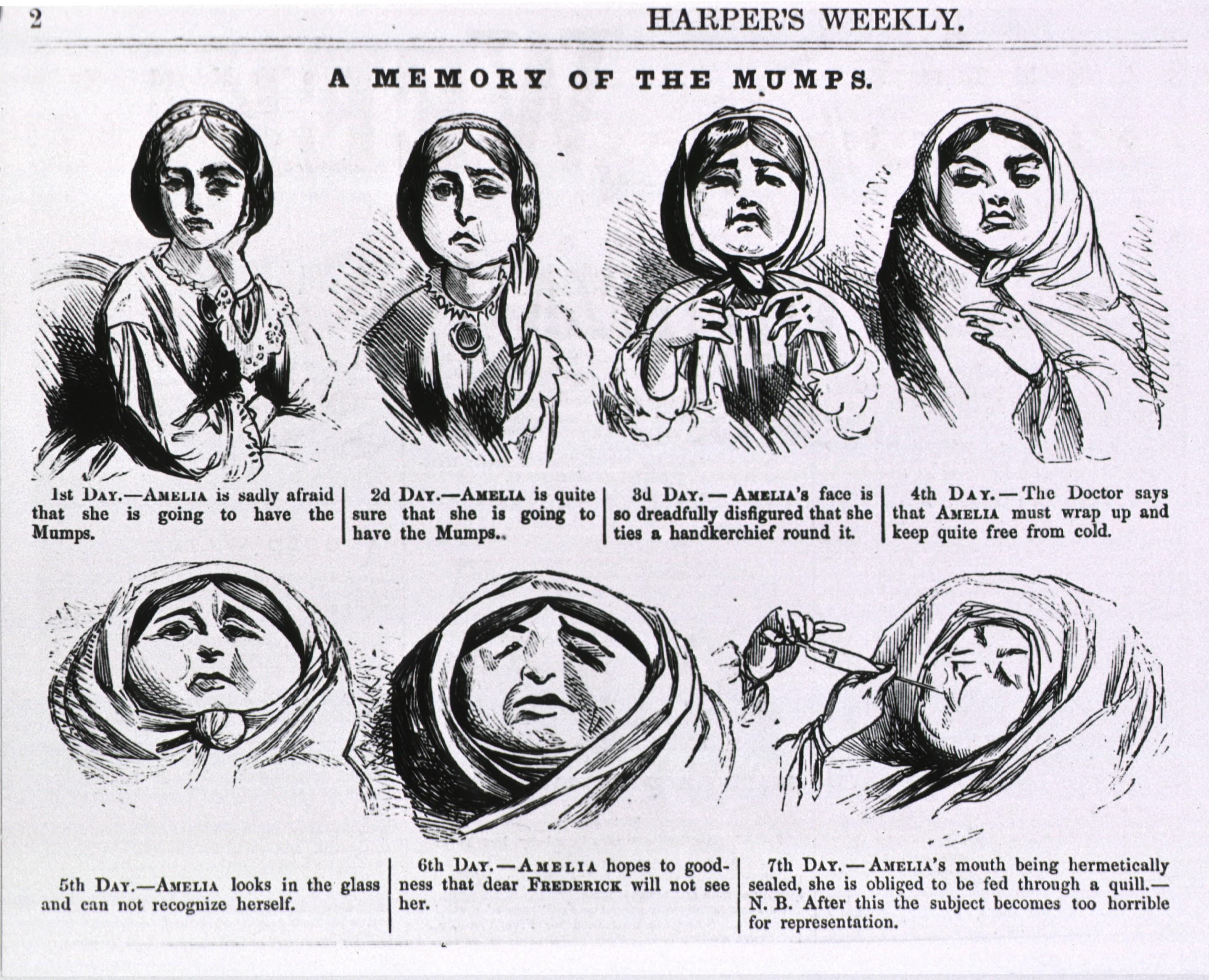 Mumps (Mumps) 57